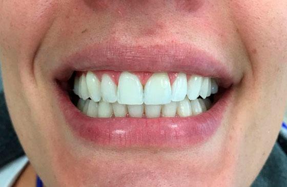 Faceta de Porcelana em um Dente? Fica bom? Dê sua Opnião.