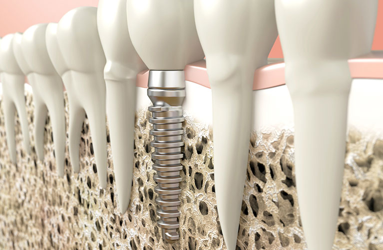 Implante Dentario tudo que você precisa