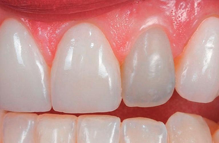 dente escuro