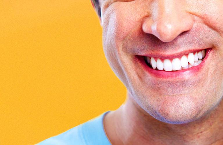 faceta dental mobile