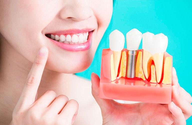 tipos de implantes dentarios