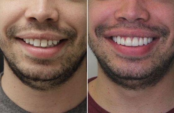 antes e depois lente de contato dental