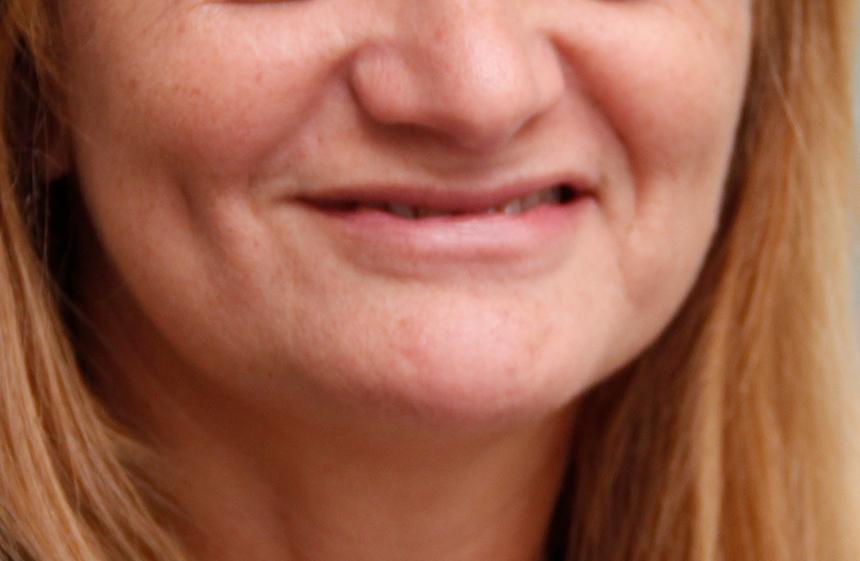 Foto de Caso Clínico da Doctor&doctor Odontologia Estética